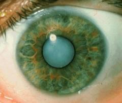 gangguan syaraf mata